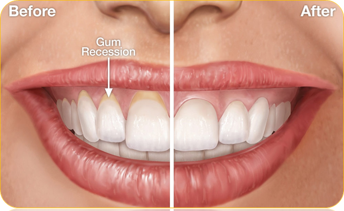 Receding Gums Grow Back Medicine