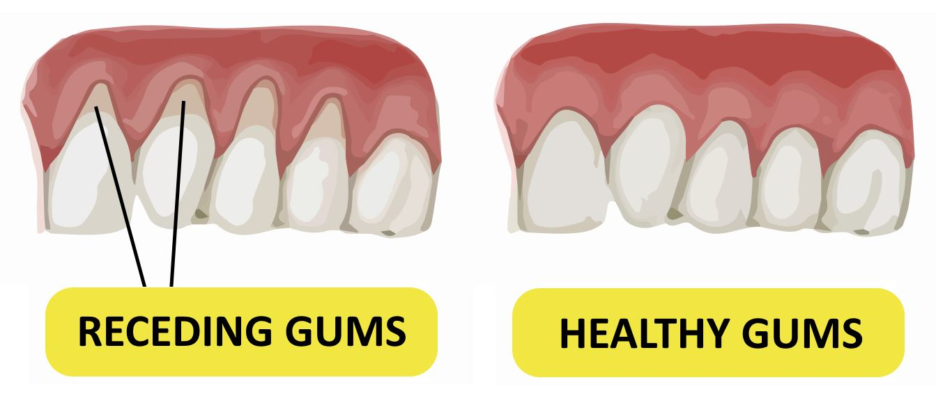 For Receding Gums Natural Remedy